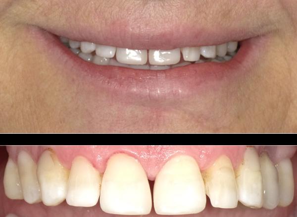 Modifica forma denti in resina - dopo