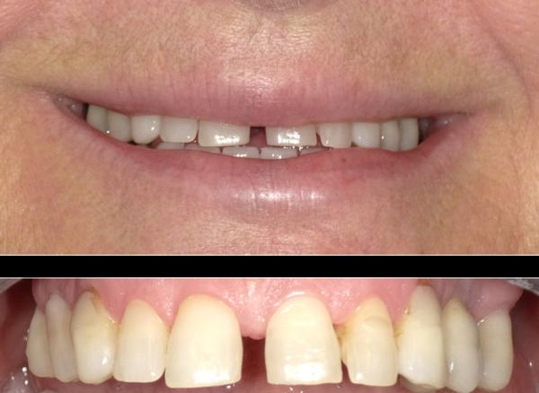 Modifica forma denti in composito - prima
