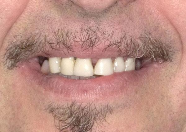 Schiaritura denti - Dopo