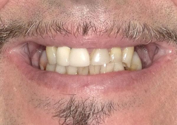 Schiaritura denti anteriori con Resine composite - Prima